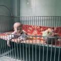 Đau xót hình ảnh trẻ em Việt Nam nhiễm chất độc màu da cam trên báo nước ngoài 1