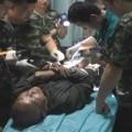 Cụ ông 83 tuổi suýt chết vì nhét nhẫn vào