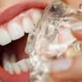 Độ cứng và độ lạnh của đá có thể làm hỏng men răng, lung lay hay gãy răng.