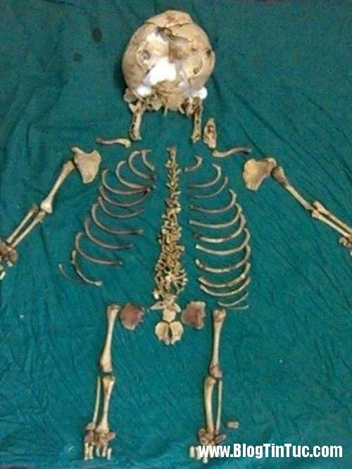 1409106228 1 Bào thai vôi hóa nằm suốt 36 năm trong bụng mẹ
