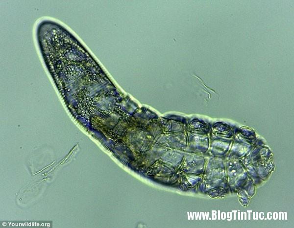 Demodex brevis Vẻ ngoài đáng sợ của loài vi khuẩn ký sinh trùng trên da mặt con người