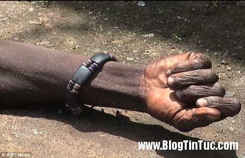 1412735684 chuyen la 1  Thi thể nạn nhân Ebola đột nhiên cử động sống lại