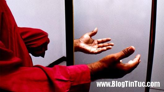 """chung ma chi Sự thật về những hội chứng """"cánh tay ma"""""""