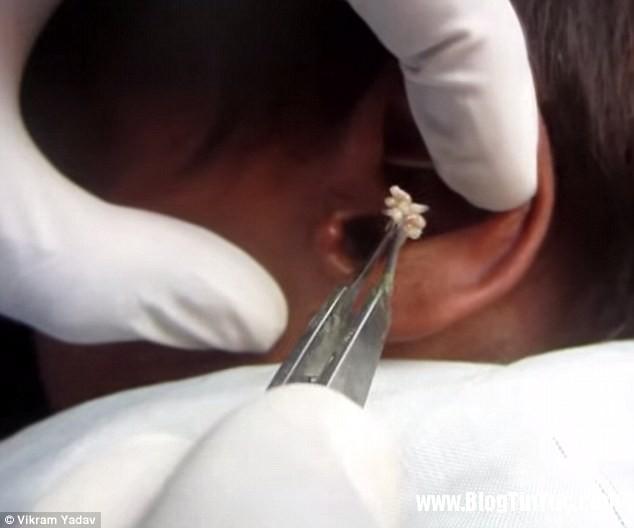 gioi1 a3a9a Hàng trăm con giòi lúc nhúc trong tai một thanh niên Ấn Độ
