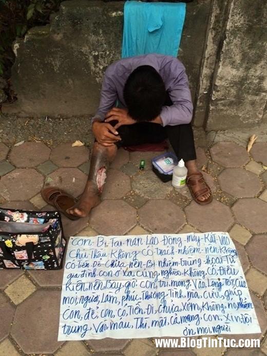 20150725 020423 1 520x693 Đau đầu với câu chuyện người đàn ông bị hoại tử chân tại Hà Nội