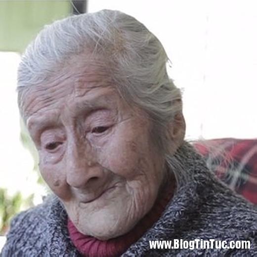 20150808 042645 cu ba mang thai 8888 520x5201 Sốc với cụ bà 91 tuổi mang bào thai hóa đá hơn 60 năm